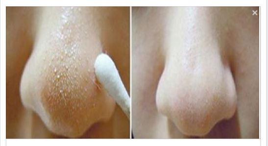 Posti sul trattamento di faccia di intestini