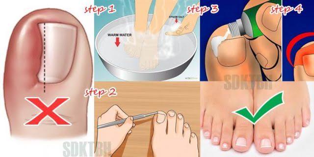 Siccome è possibile liberarsi un fungo su unghie su mani