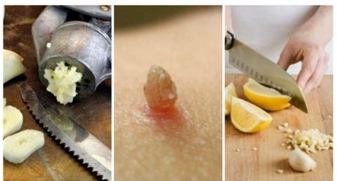 Verruche piane: come riconoscerle e come curarle - GreenMe.it