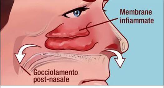 Ecco come pulire i seni nasali in pochi secondi e solo con for Seni diversi